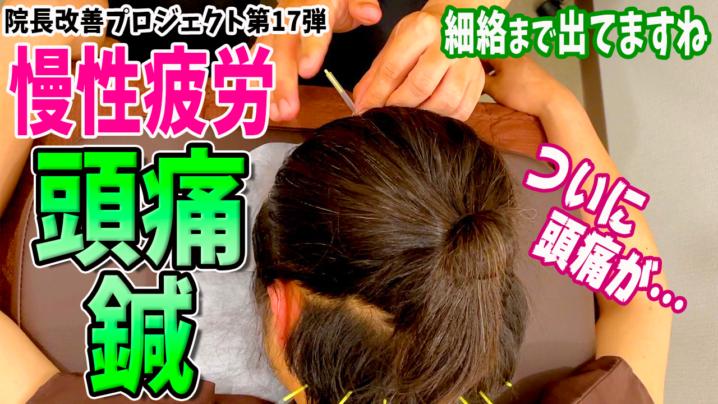 頭痛を治す方法